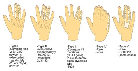 Diagrams Images Humand Types Polydactyly