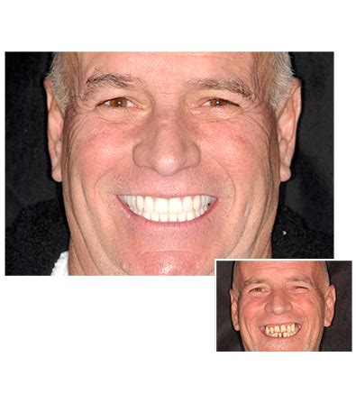 Dental Implant Learning Center  Clearchoice Dental Implants. Business Advisory Services Sm Energy Company. Minority Loans For Business The Peace Flag. Assisted Living In Albuquerque. How To Scan And Fax From Computer. Cyber Security Research Arts Management Major. Ca Dept Of Child Support College Salem Oregon. Schools With Industrial Design. Divorce Attorney Rates Business Liability Ins