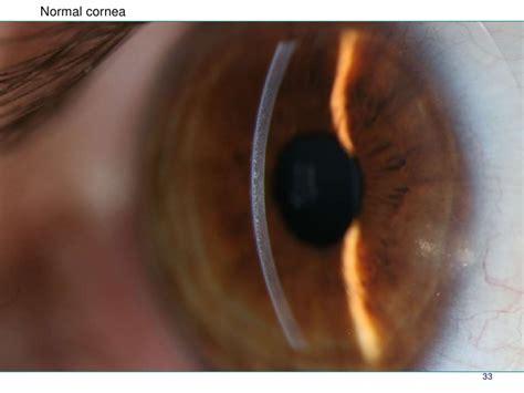 slit l eye exam understanding the slit l