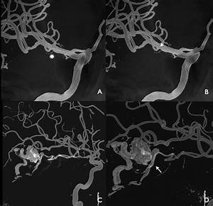 Multimodal Angiographic Assessment Of Cerebral