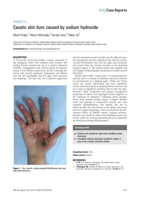 (PDF) Caustic skin burn caused by sodium hydroxide