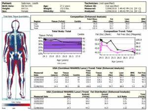Body Composition Chart Comparing Body Composition Reports Dexa Versus 3d Scan