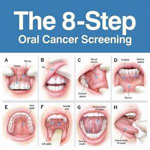 HPV and Oral Cancer | Mouth Watchers