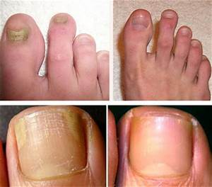 Каким средством эффективнее лечить грибок на ногах