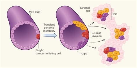 trail  invasive cells  breast cancer
