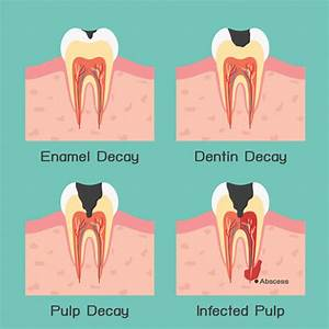Dental Fillings Putney