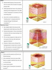 Pressure Ulcer Staging  Images Are Reused With Permissi
