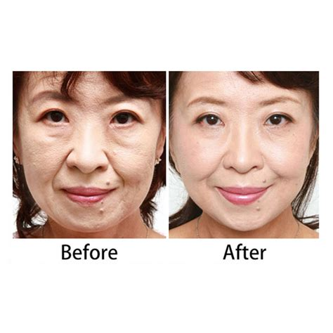 led light therapy before and after anti aging pdt led mask red light electric led face mask