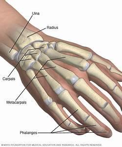 Broken Wrist  Broken Hand Disease Reference Guide