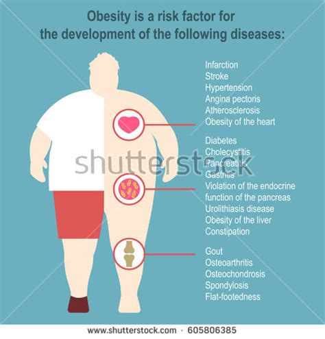 download powerpoint template metabolic free obesity vector illustration poster template effect stock
