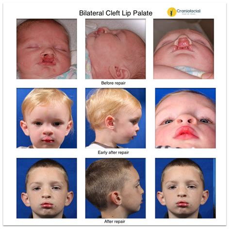 Bilateral Cleft Lip Palate Pictures Decorativestyleorg