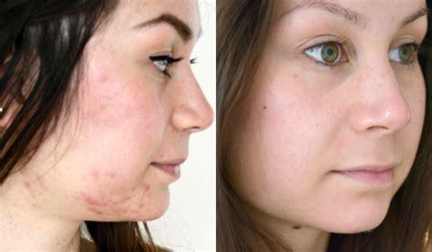 Parfumvrije hypoallergene make-up - mild cosmetics