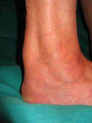 die entzuendungdegeneration der achillessehne tendinitis