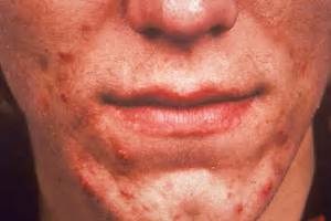 Medical Pictures Info – Acne Vulgaris Acne