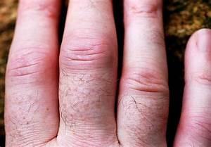 Болят суставы на пальцах рук и колени