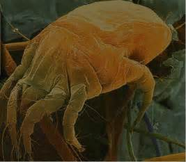 Dust Mites Look Like