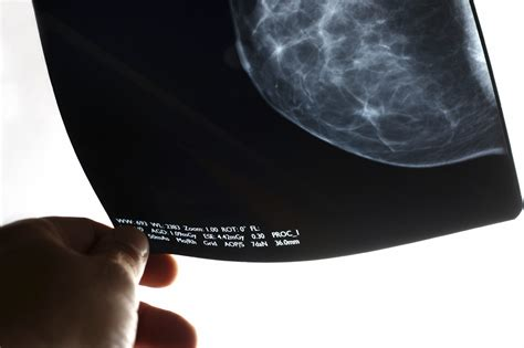 Study Finds Surprising Results In Breast Tissue Biopsies