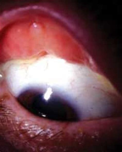 183 x 295 png 62 кб. Floppy eyelid syndrome   Eye Lid Laxity   ectropion   entropio   floppy eyelid laxity   trichiasis