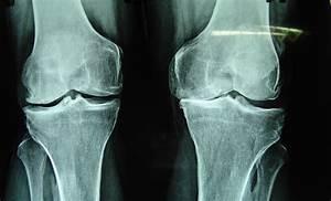 Hip Pain After Sitting Then Standing  U2013 Why Hip Flexor Blogs