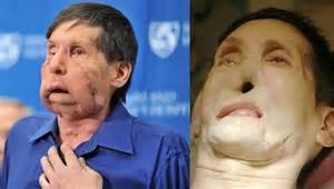 James Maki Face Transplant