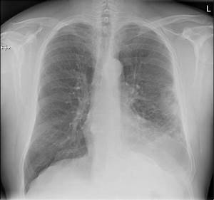 Pleural Empyema  A Case Of Failing To See The Discharge