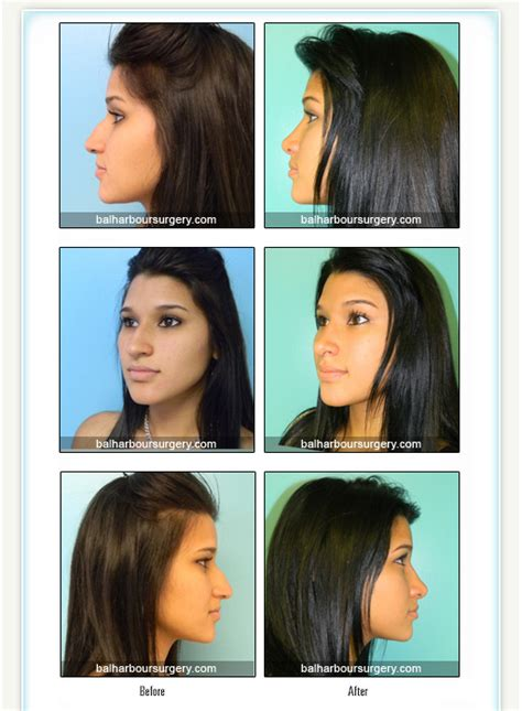 Rhinoplasty Result Photos  Miami Plastic Surgery Blog. Small Business Phone System Voip. Roth Ira Fee Comparison Local Insurance Agent. Florida Junior Colleges Saving Account Online. High Speed Internet Satellite. Limited Liability Company Benefits. How Much Is A Ssl Certificate. What Do You Do In Nursing School. Dodge Dealers Missouri Surgery For Vulvodynia