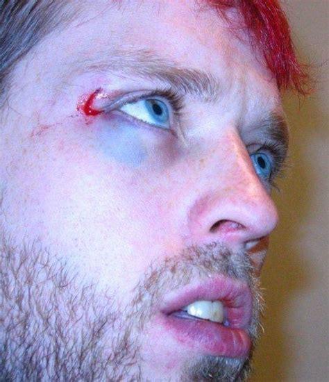 bleeding eyes bleeding eyes question  answers firmoo