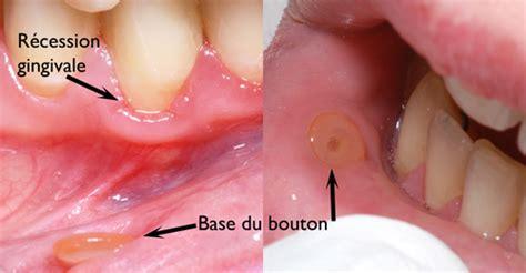 point noir interieur bouche tongue piercing dr sylvain chamberland orthodontiste