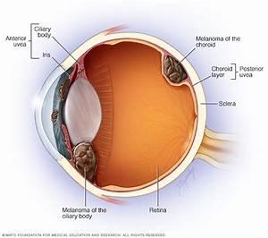 Eye Melanoma Disease Reference Guide