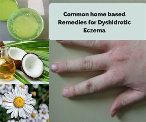 Dyshidrotic Eczema Home Remedies by Dyshidrotic Eczema Home Remedies Causes Symptoms