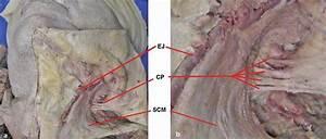 Cervical Plexus Block