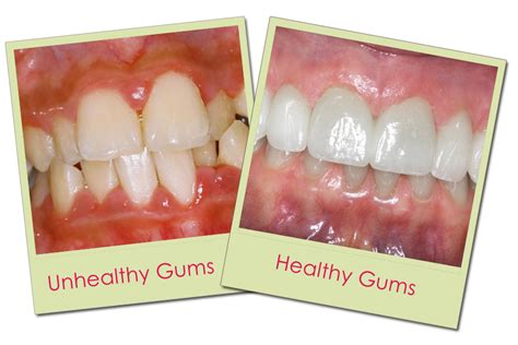 what color are your gums supposed to be healthy cat gums images