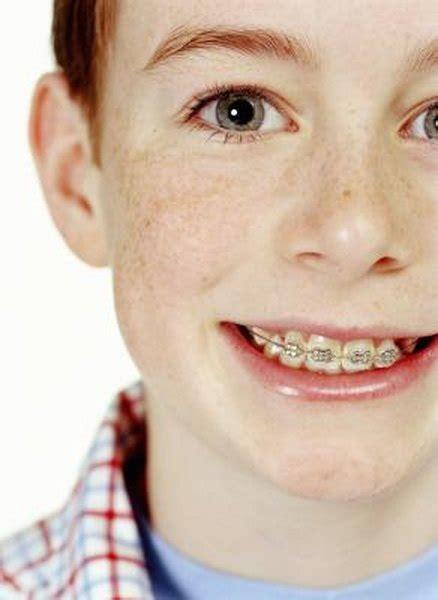 financial   braces  kids teeth budgeting money