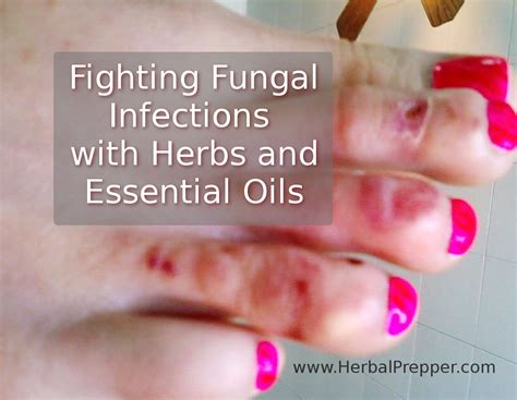 Fighting Fungal Infections With Herbs Herbal Prepper