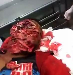 OMG!! See How A Thief's Face Was Ripped To Shreds By Pit ...
