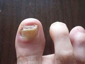 diy toenail removal not for the weak of stomach