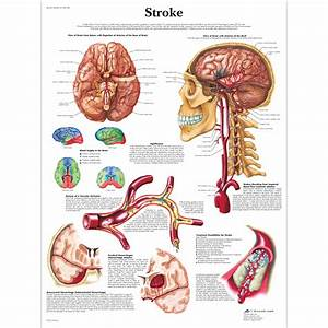 Anatomical Charts - Neurological Posters - Pathology Posters - Geriatric Health Charts