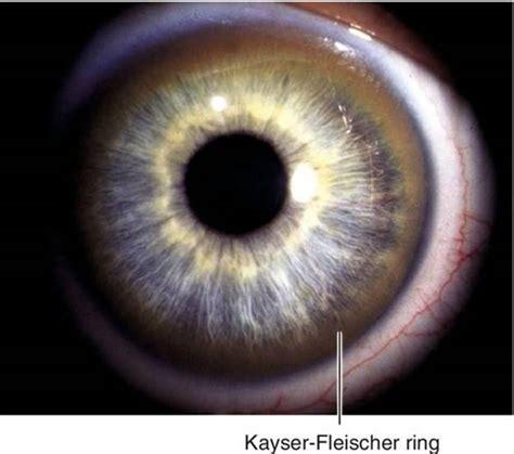 cornea  massachusetts eye  ear infirmary