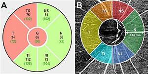 Oct Angiography Valuable For Evaluating Glaucomatous Vf