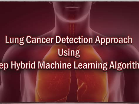 detection cancer cad system lung