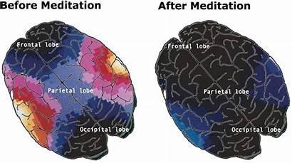 Meditation Before Brain Hypnosis Scans Reading Ecg