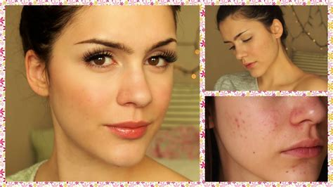 ⭐️ Last Acne Update! How I Cured My Acne! Doxycycline