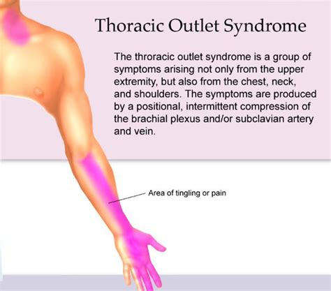 Challenges To The Diagnosis Of Thoracic Outlet Syndrome. Badcredit Payday Loans Macular Scar Treatment. Free Email Marketing Lists Pci Dss Standards. Department Of Labor Workers Compensation. Merchant Card Processor Naplex Exam Questions. Cloud Based Call Center Solutions. Apple Home Improvements Hipaa Medical Records. Prostate Cancer Treatment Statistics. Vidal Sassoon Academy Chicago