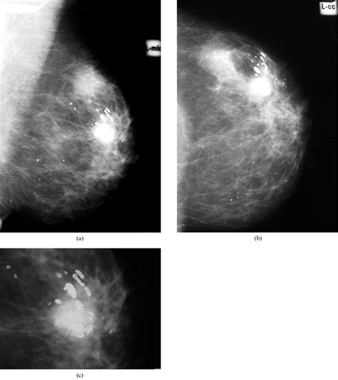 Diagnostic Mammogram Causes Symptoms Treatment