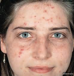 Inflammatory acne: The lesions of inflammatory acne include ... Acne
