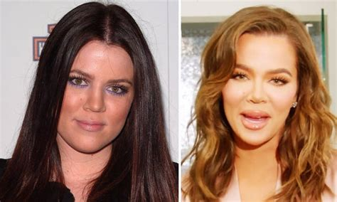 Khloe Kardashian Before And After: Old Photos That Show ...