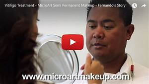 Vitiligo Treatment by MicroArt Semi Permanent Makeup