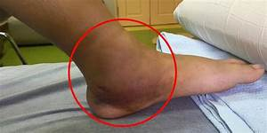 Broken Ankle - The Complete Injury Guide