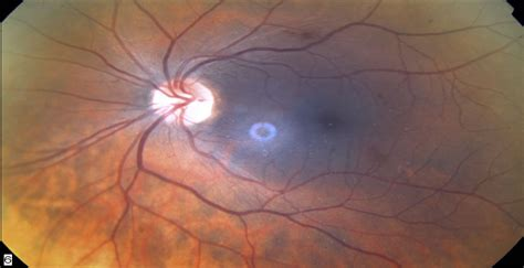 retinal hemorrhage   unique ophthalmic manifestation
