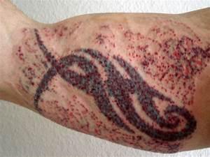 Drachen Tattoo Oberarm : wieder eine neue laser sitzung tattoo ~ Frokenaadalensverden.com Haus und Dekorationen